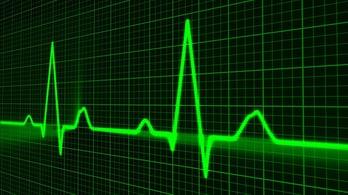 medical heart beat sensor